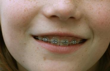 Kind mit Zahnspange (Brackets)